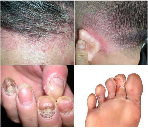 bệnh nấm da đầu và tay chân